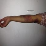 مستوصف أهلي بالأفلاج  يتسبب بكسر «إبرة» داخل يد مواطن من أهالي المحافظة