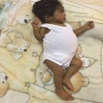 الطفلة (حنين) تناشد وزارة الصحة إنقاذها من تليف الكبد