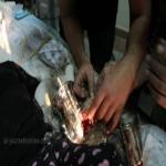 تحرير يد طفلة من (فرامة) لحم