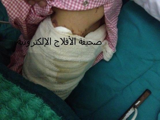 حريق في طفلة من الدرجه الثانيه والسبب تجاهل الجهات الأمنية والبلديه