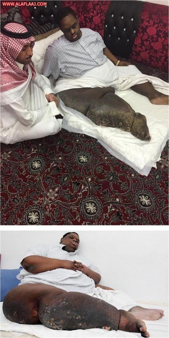 فايز المالكي: بتغريدة إلى محمد بن سلمان قامت وزارة وانتهت معاناة مريض لها 6 سنوات